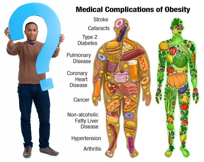 genetics of obesity The genetics of obesity are complex and likely involve the interaction between multiple genes through a number of studies, over 250 genes, markers, and chromosomal regions have been identified and associated with human obesity.